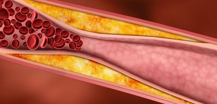 Aterosclerose: causas, sintomas e tratamentos