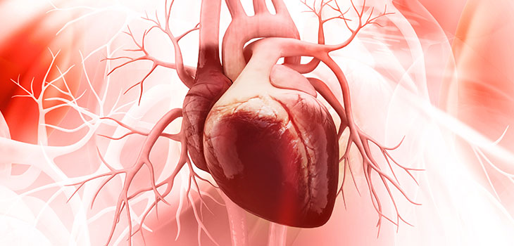 Ataque cardíaco (Infarto do miocárdio): causas, sintomas e tratamentos