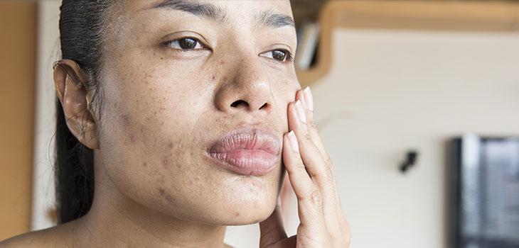 Dermatose papulosa nigra: o que é e como tratar?