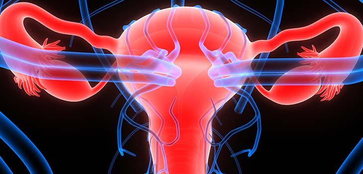 Câncer da trompa de Falópio: causas, sintomas e tratamentos