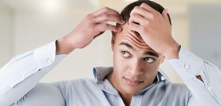 Alopecia Areata: causas, sintomas e tratamentos
