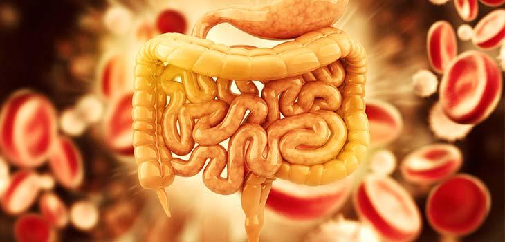 Diverticulose e diverticulite: causas, sintomas e tratamentos