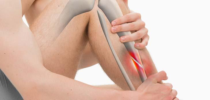Fratura da perna: causas, sintomas e tratamentos