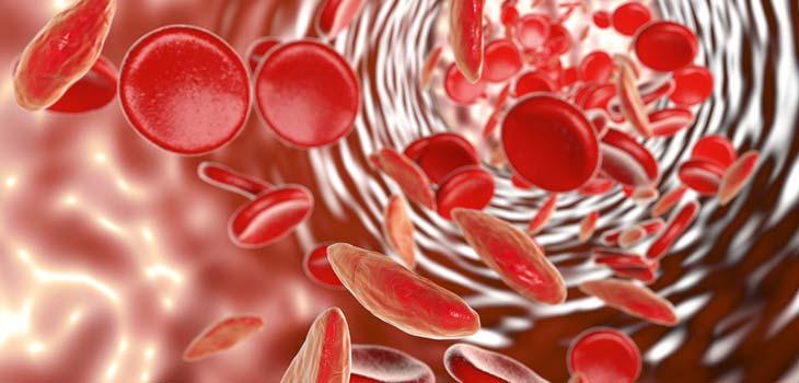 Anemia de Células Falciformes: causas, sintomas e tratamentos