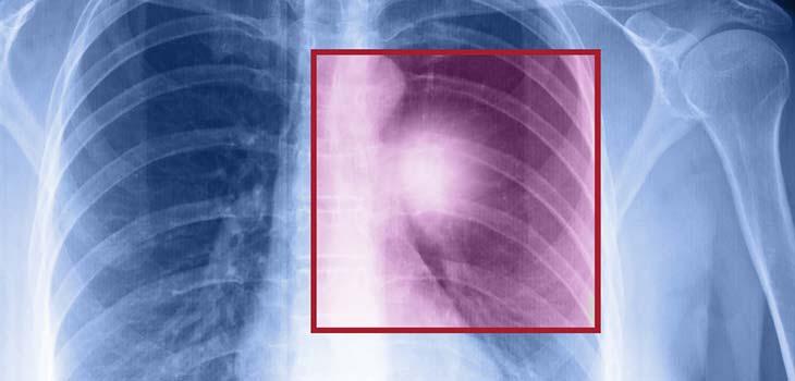 Câncer de pequenas células do pulmão: causas, sintomas e tratamentos