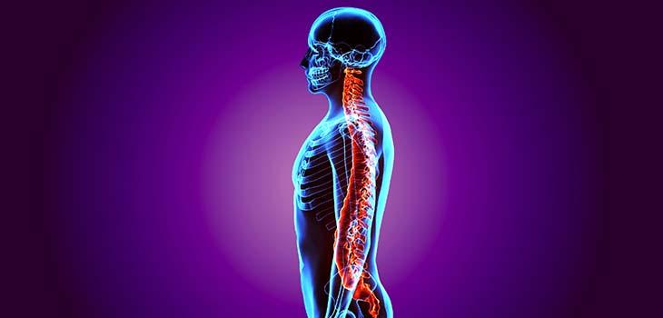 Traumatismo da medula espinhal: causas, sintomas e tratamentos