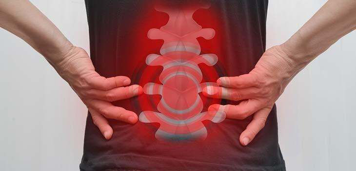 Tumores da medula espinhal: causas, sintomas e tratamentos