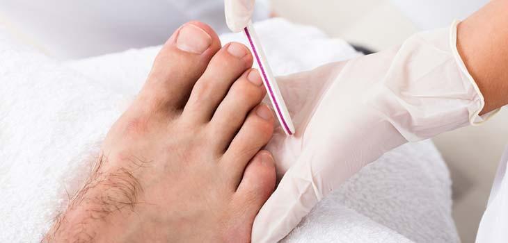 Unha encravada: causas, sintomas e tratamentos