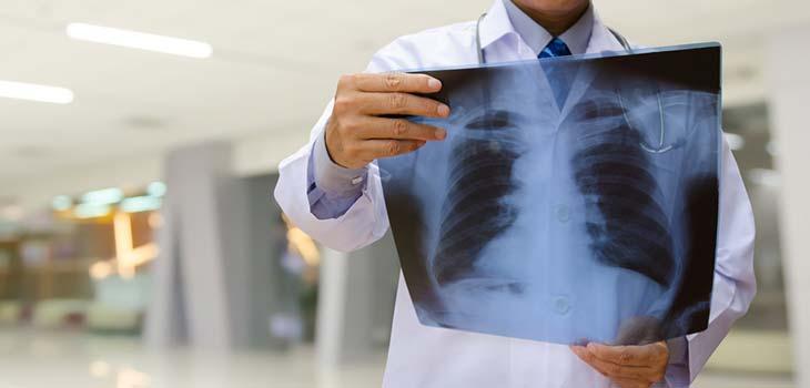 Câncer do pulmão de grandes células: causas, sintomas e tratamentos