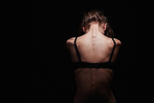 Anorexia nervosa: entenda sobre este distúrbio alimentar