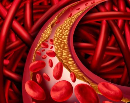 O que fazer quando se tem gordura no sangue?